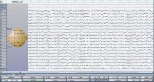 EEG, Elektroenzephalography