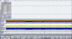 EEG Trend Modul